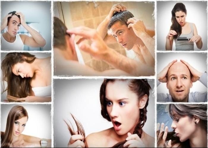क्या आप के सर के बाल हो रहे हैं गायब , तो यह करें उपाय !