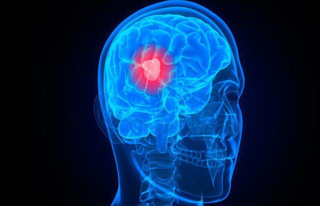नाक से निकल सकती है दिमाग की गांठ