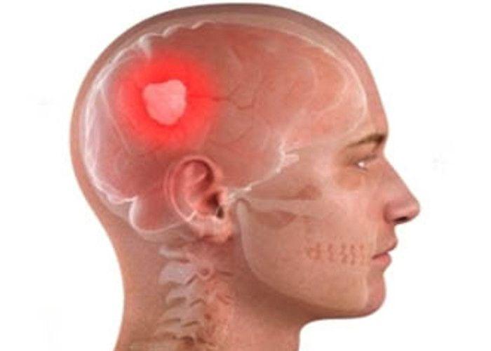 Image result for ट्यूमर