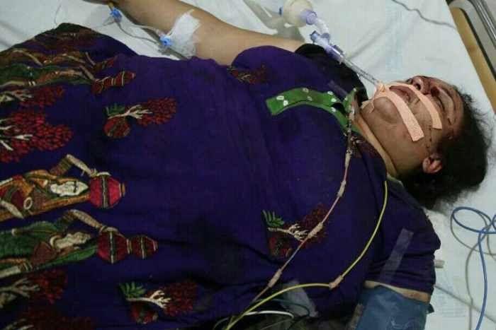 बाइकर्स ने मारा कट, स्कूटी से गिरी महिला की हालत नाजुक