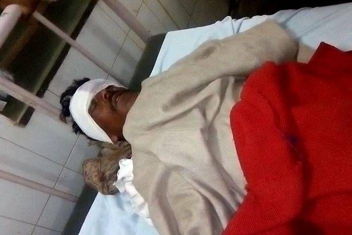 अलवर-सिकन्दरा मेगा हाईवे पर खड़ी बस से टकराया जुगाड़, आधा दर्जन घायल