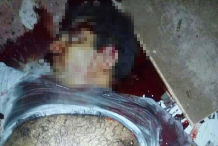 आनंदपाल के छलनी शरीर से निकला खून छत से जमीन तक आ गया, पुलिस की गाड़ियों पर मिले गोलियाें के निशान