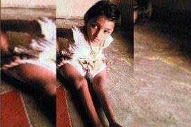 अजीब बीमारी... 9 साल की लक्ष्मी लगती है चार साल की, 13 बार टूट चुकी हैं हड्डियां