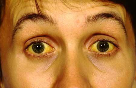 Image result for पीलिया रोगी के लिए काफी फायदेमंद है ये 5 घरेलू उपचार