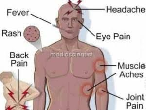 Typhoid Fever Causes, Symptoms And Treatment - बदलते